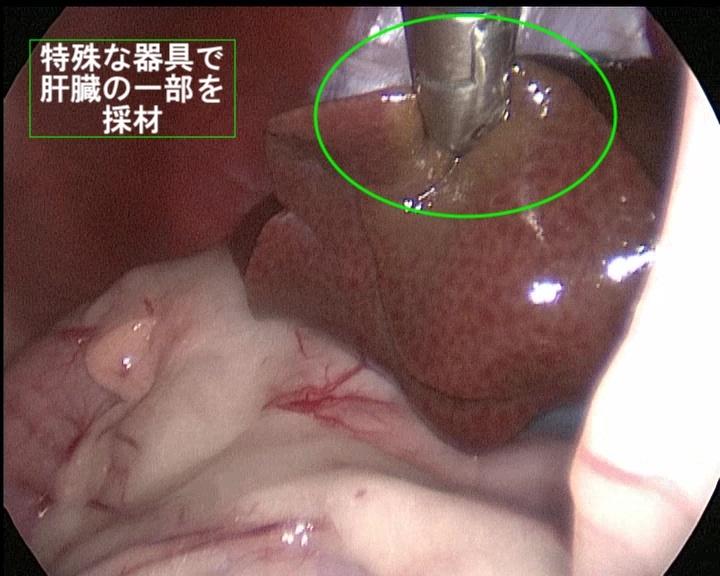 腹腔鏡手術の適応症例
